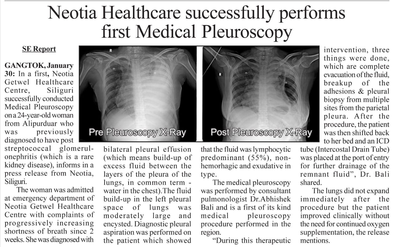 Medical Pleuroscopy performed for the first time in North Bengal at Neotia Getwel Healthcare Centre, Siliguri